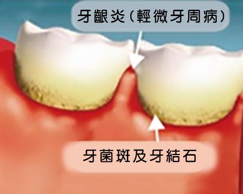 牙周病圖示1