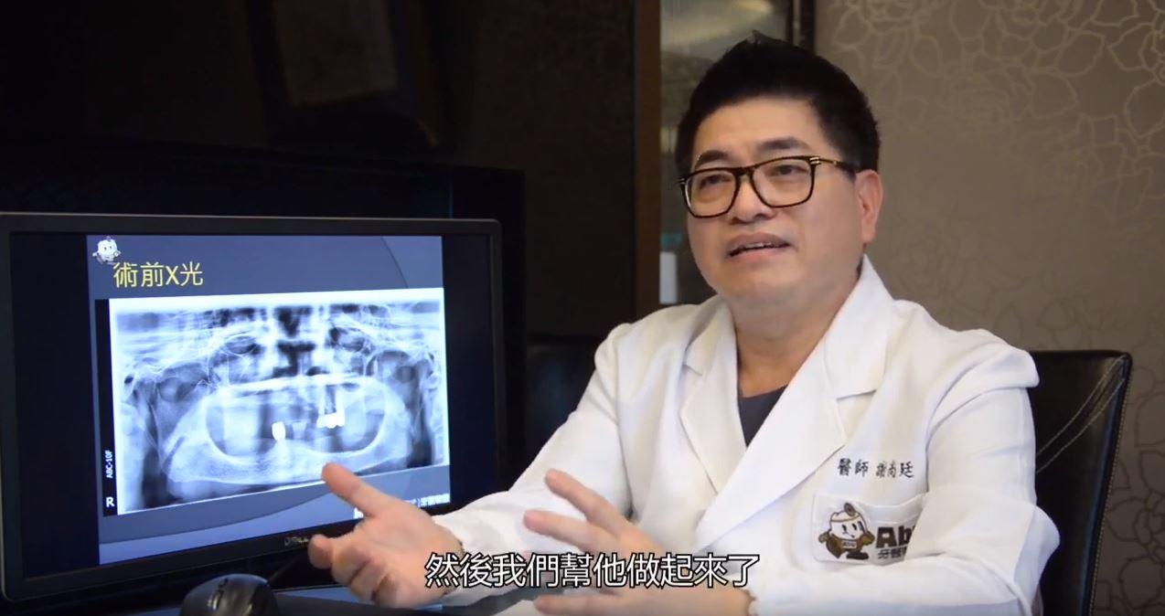 高雄植牙推薦 | 謝尚廷醫師 植牙技術獲資深牙醫教授肯定
